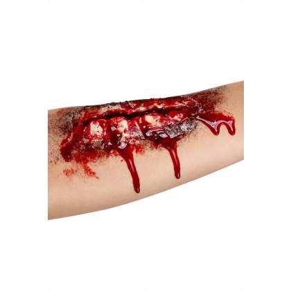 Wunde Unterarm