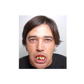Ekel Nerd Zähne